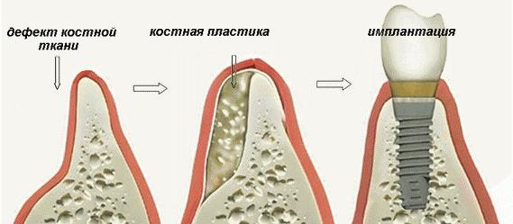 Этапы подготовки к имплантации