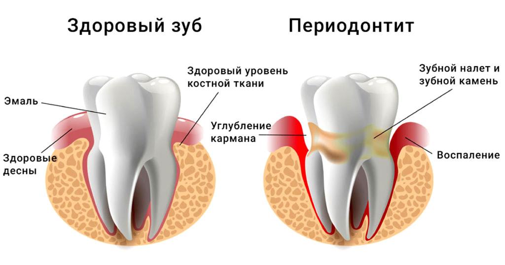 Сравнение здорового зуба с зубом с периодонтитом