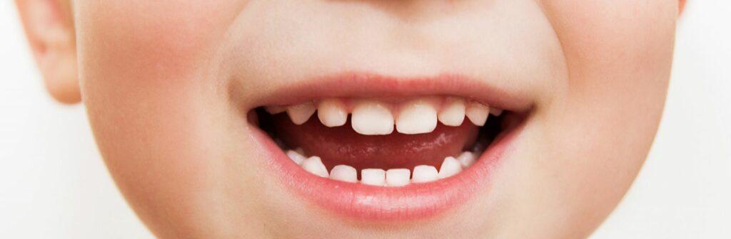 Здоровые детские зубы
