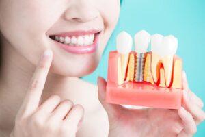 Искусственный зубной корень